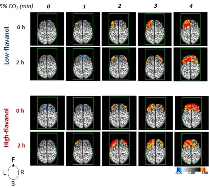 carte du cerveau par IRM